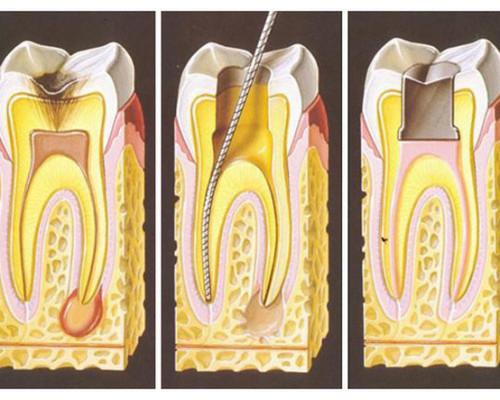 apikalnyj-periodontit_640x443