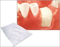 Восстановление костной ткани зуба