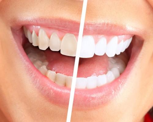 otbelivanie-zubov-beyond-07