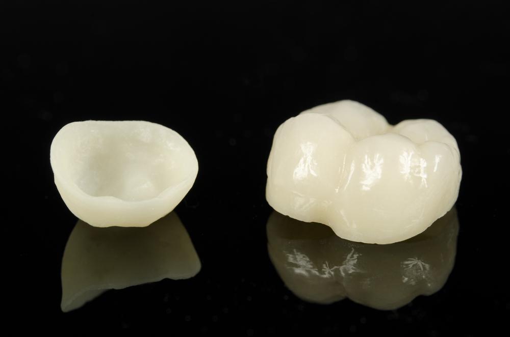 prosthodontics-05