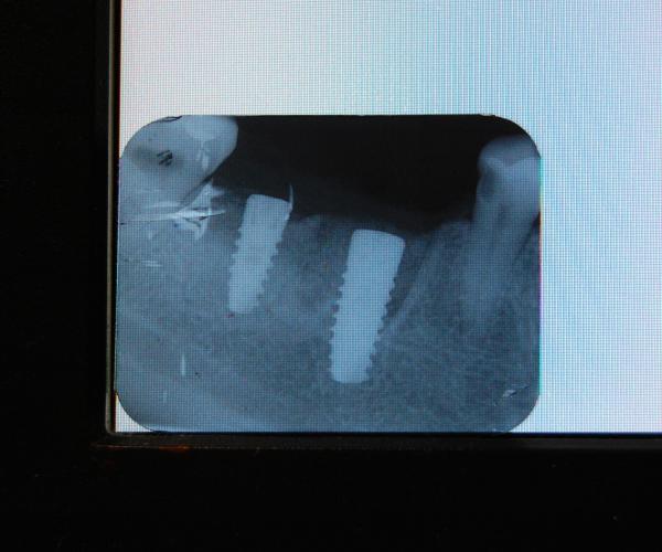 немедленная имплантация после удаления зуба