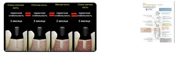 implant megagen anyridge