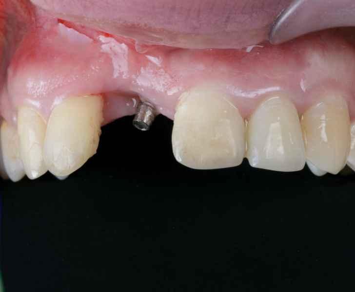 Имплантация зубов Черкассы