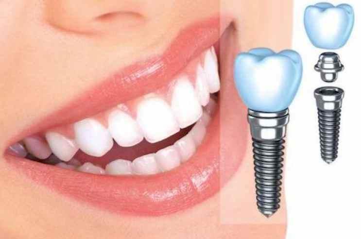 Имплантация зубов – вредно или нет